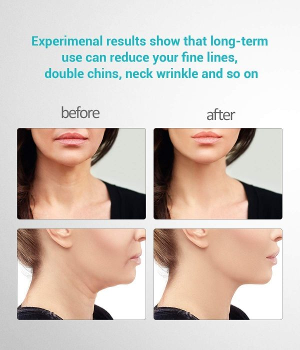 Handheld Neck Lift & Wrinkle Elimination Device : Results